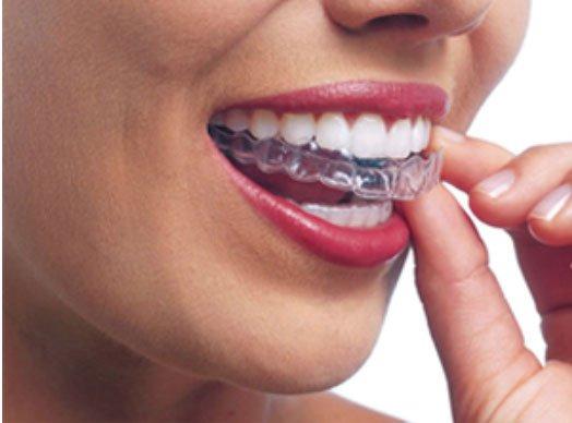 Dịch vụ niềng răng không mắc cài