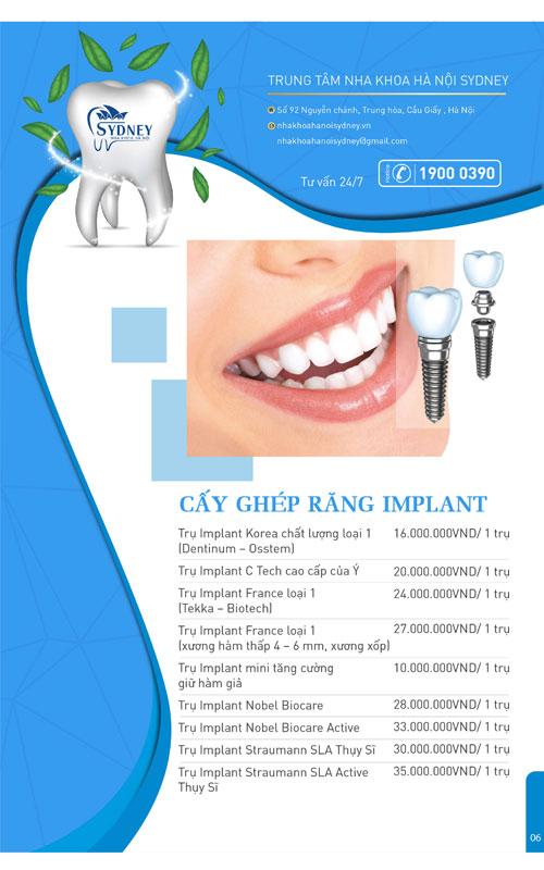 Bảng giá cấy ghép răng implant nha khoa Sydney