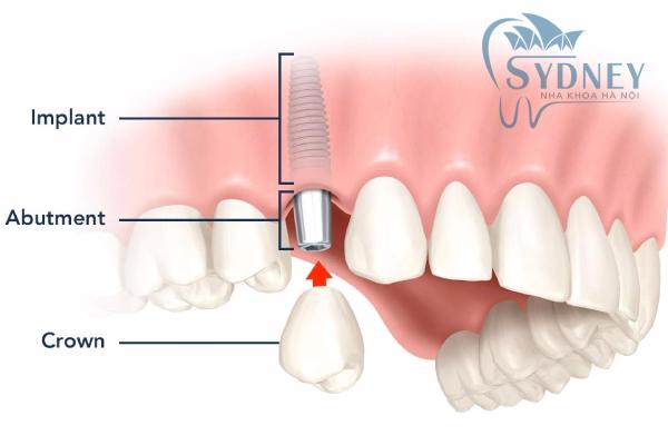 Cấy ghép răng bằng trụ implant