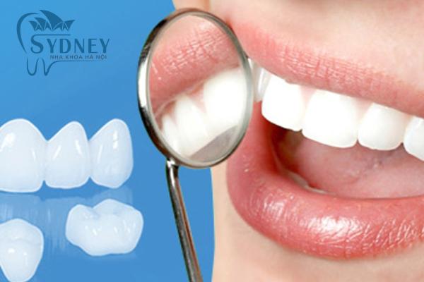 Răng sứ thẩm mỹ giúp bạn khắc phục được nhiều vấn đề về răng hơn