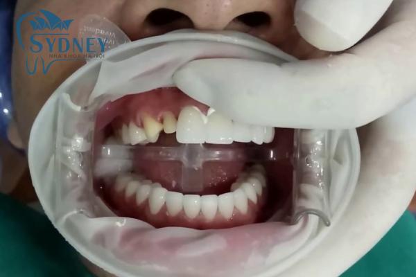 Nếu như hàm bạn bị hô nhẹ thì có thể sử dụng phương pháp này
