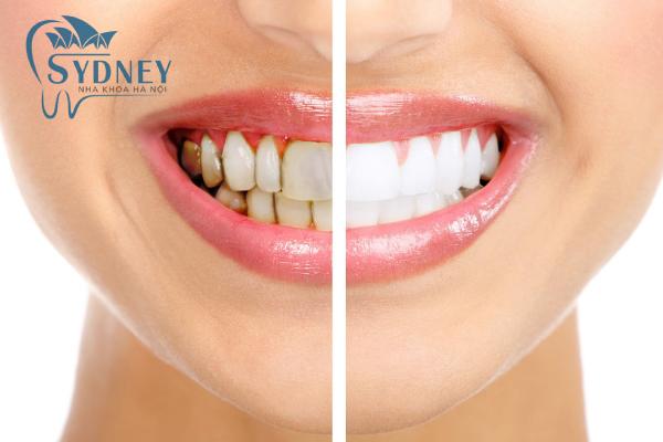 Răng sứ có màu sắc tự nhiên