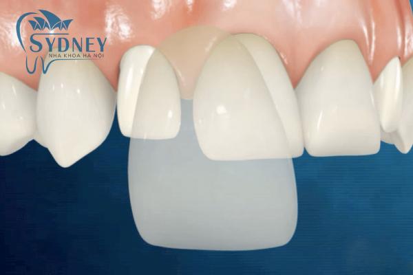 Bọc răng sứ có tác dụng rất lớn về thẩm mỹ