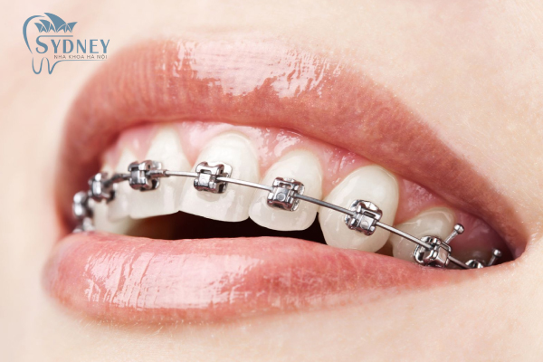 Niềng răng giúp cho răng đều và chắc khỏe hơn