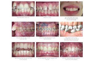 sự phát triển lệch lạc của hàm