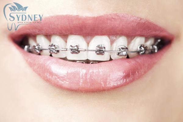 Mắc niềng răng bằng kim loại