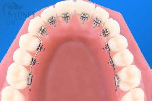 mô hình niềng răng móm