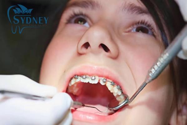 Có 4 giai đoạn khi niềng răng mà bạn phải trải qua