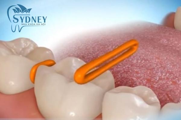 Đặt kẽ thun để có thể niềng răng dễ dàng hơn