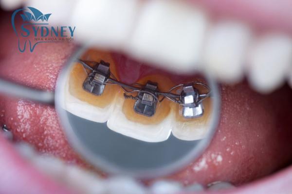 Lần lượt mắc cài dây cung cho răng