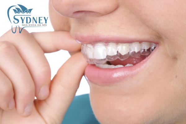 Thời gian niềng răng còn phụ thuộc vào mức độ răng của bạn