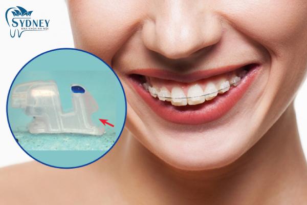 Mắc cài sứ làm giảm đi thời gian niềng răng