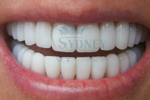 Nê đi bọc răng sứ nếu như bạn đang có vấn đề về thẩm mỹ răng