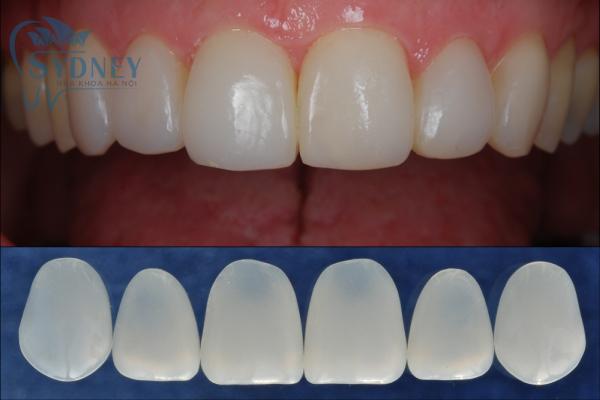 Nếu như bạn đang có quá nhiều vấn đề lớn về răng thì hãy nên đi niềng răng