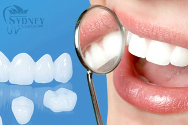 Lớp răng sứ như một lớp áo cho răng trắng sáng hơn