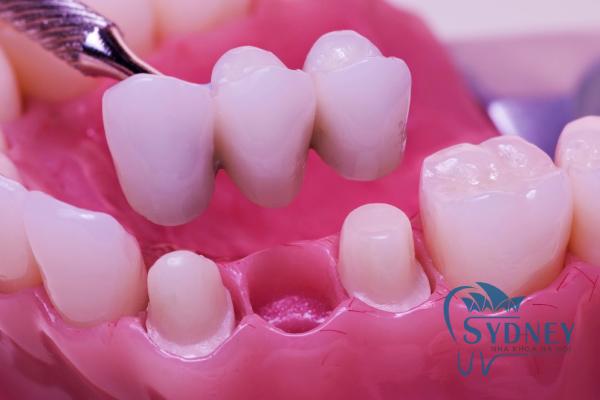 Cầu răng sứ cần ít nhất 3 răng trở lên