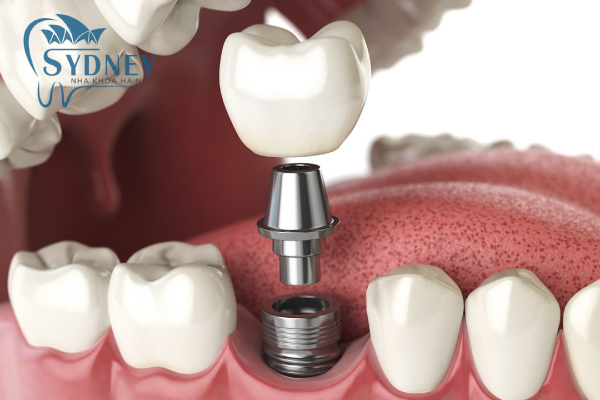 phương pháp cấy ghép implant hoàn toàn mới không ảnh hưởng tới sức khỏe