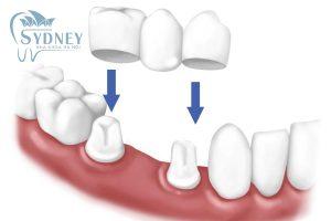 PCách trồng răng cửa bằng răng giả tháo lắp?