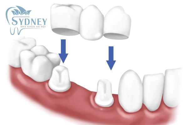 Phương pháp cầu răng sứ hiện nay đang được nhiều người sử dụng