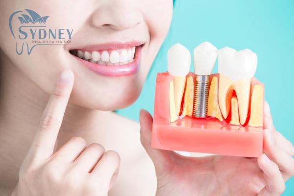 Phương pháp cấy ghép implant là phương pháp an toàn nhất khi mất hay nhiều răng