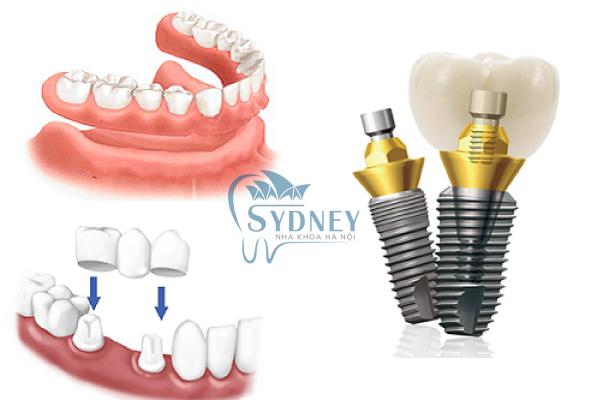 Trồng răng giả để đảm bảo được tính thẩm mỹ cũng như sức khỏe