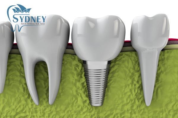 Phương pháp implant có nhiều ưu điểm