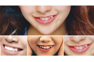 Răng khểnh hiện nay mang tính thẩm mỹ rất cao