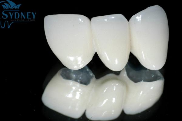 Trồng răng là phương pháp tốt nhất hiện nay để thay thế răng đã mất