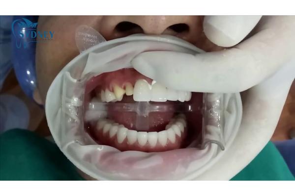 Bọc răng sứ có thời hạn sử dụng từ 10 đến 20 năm