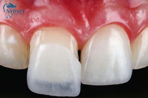 Răng sứ titanium luôn là loại răng được ưa chuộng nhất