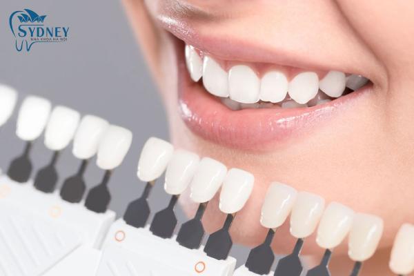 Răng sứ thẩm mỹ có rất nhiều loại