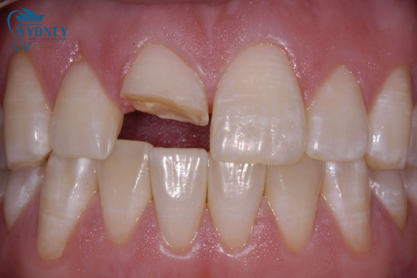 Những người bị mất răng hoặc bị mẻ nên bọc răng sứ thẩm mỹ