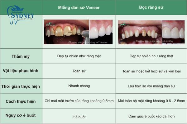 Những điều bạn chưa biết về bọc răng sứ