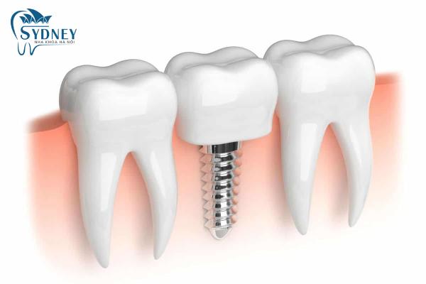 Trụ implant thay thế phần chân răng đã mất