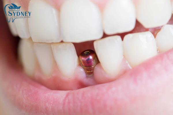 Cấy ghép implant có gây đau không là do cơ địa mỗi người