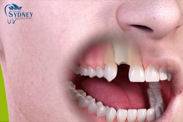 Việc nhổ răng sẽ luôn gây đau đớn hơn việc cấy ghép implant