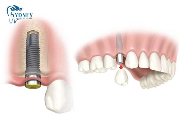 Phương pháp cấy ghép implant có được tốt như bạn nghĩ