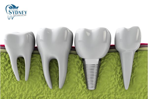 Phương pháp cấy ghép implant là gì?