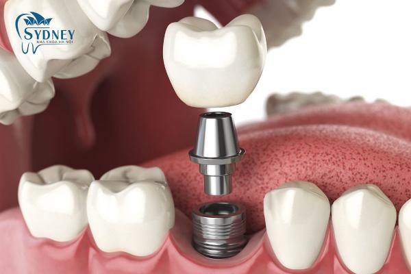 Trồng răng implant tại nha khoa Sydney