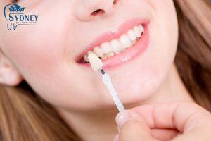 Phương pháp đắp composite để tạo ra răng khểnh