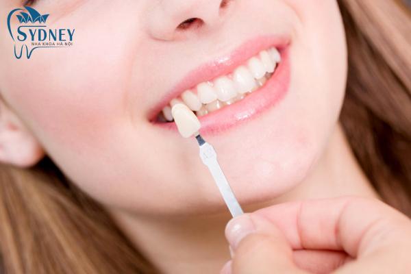 Bọc răng sứ thẩm mỹ hiện nay đang là xu hướng mới