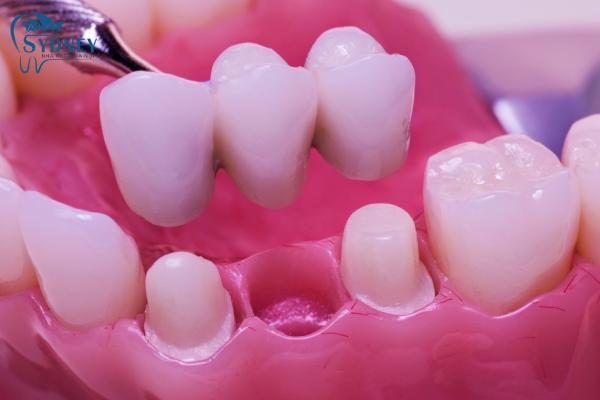Răng sứ thẩm mỹ khắc phục được nhiều thứ