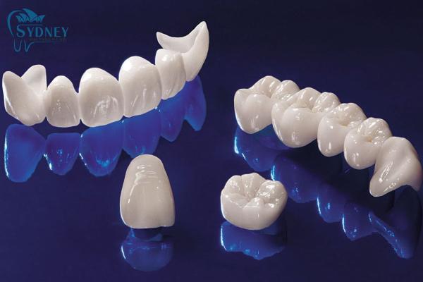 Răng sứ có rất nhiều ưu điểm cho nên có nhiều người sử dụng
