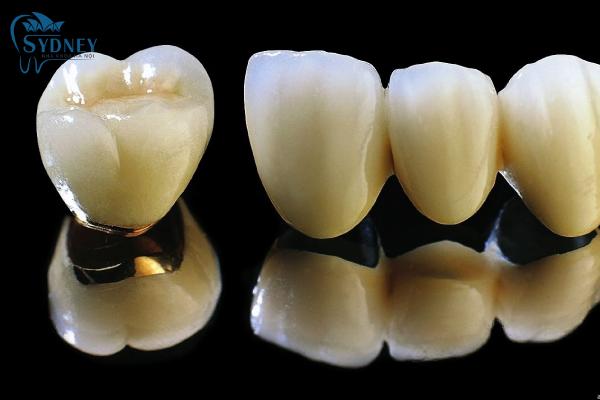 Có 2 loại răng sứ thẩm mỹ