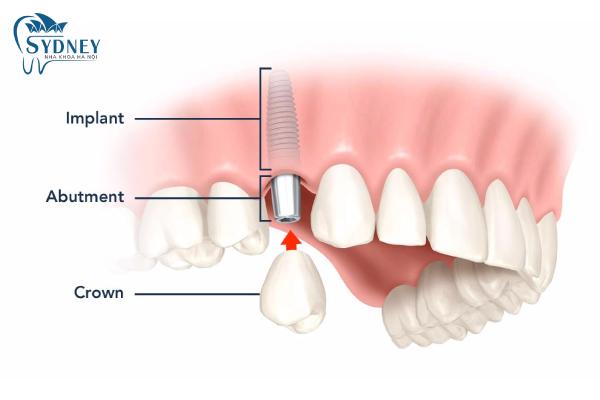 Hãy đến với nha khoa Sydney để cấy ghép răng an toàn