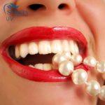 Làm răng sứ thẩm mỹ giá bao nhiêu?