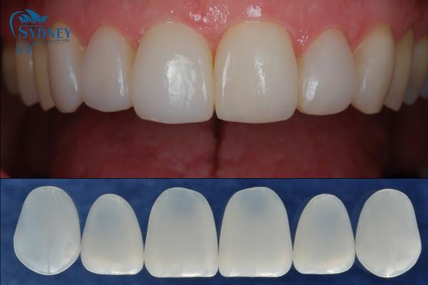 Quy trình làm răng thẩm mỹ