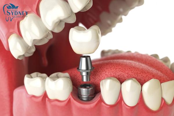 Răng implant có cấu tạo bởi 3 phần chính