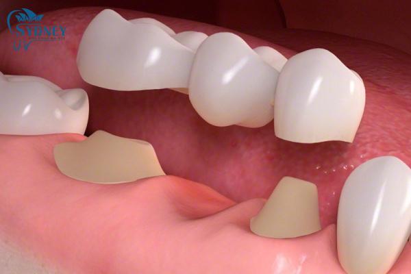 Có 8 bước trồng răng mà bạn cần phải biết