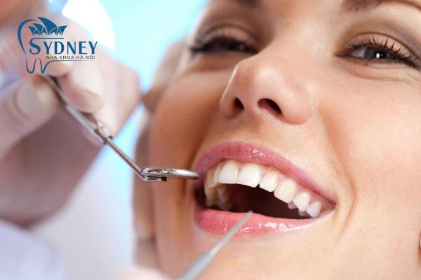 Trồng răng giả là gì?